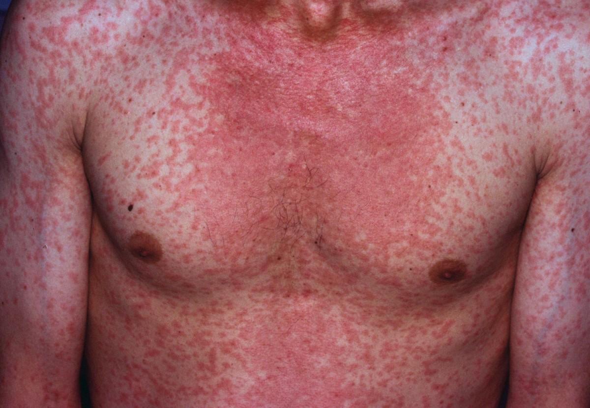 Высыпания на коже при кори
